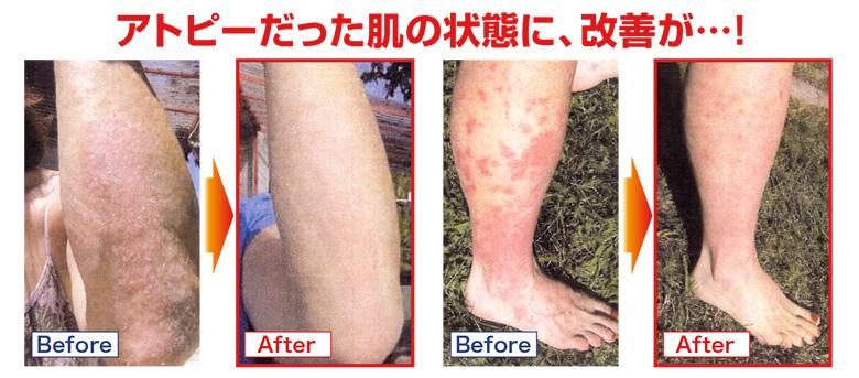 アトピーだった肌の状態に、改善が!
