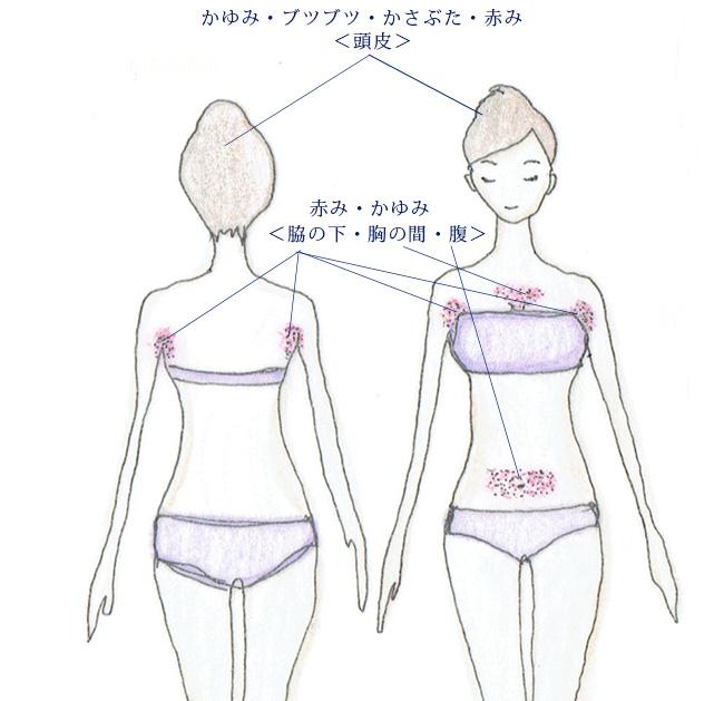 脂漏性皮膚炎が現れる身体の部位