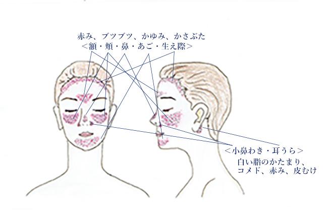 脂漏性皮膚炎が現れる顔の部位