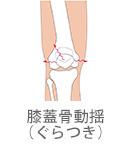 膝蓋骨動揺(ぐらつき)