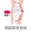 側副靱帯損傷
