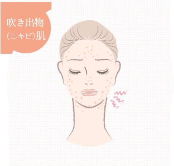 吹き出物(ニキビ)肌